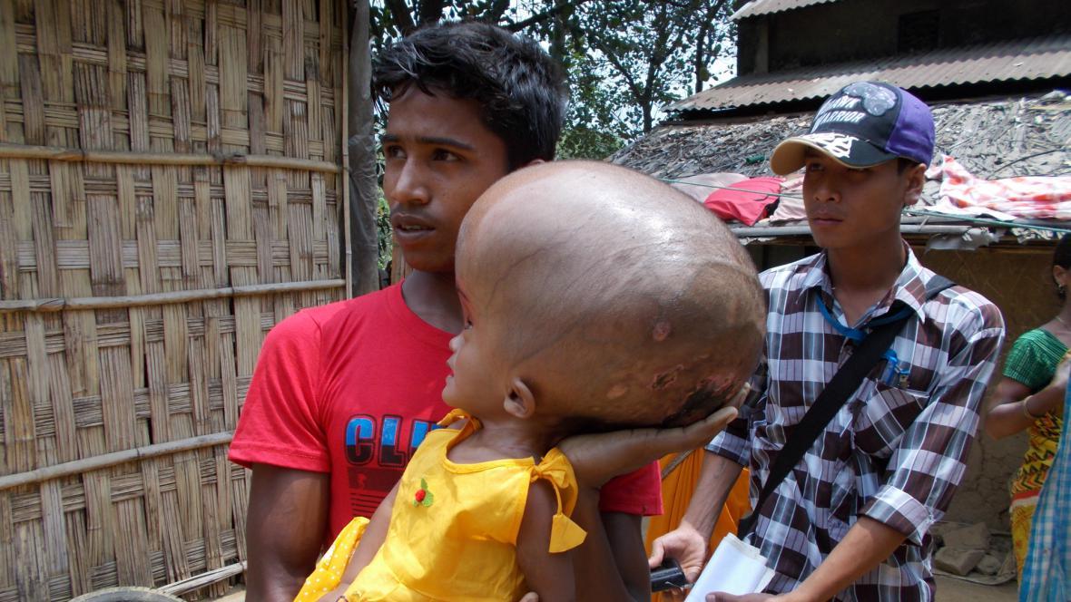 Indická dívka trpící hydrocefalem