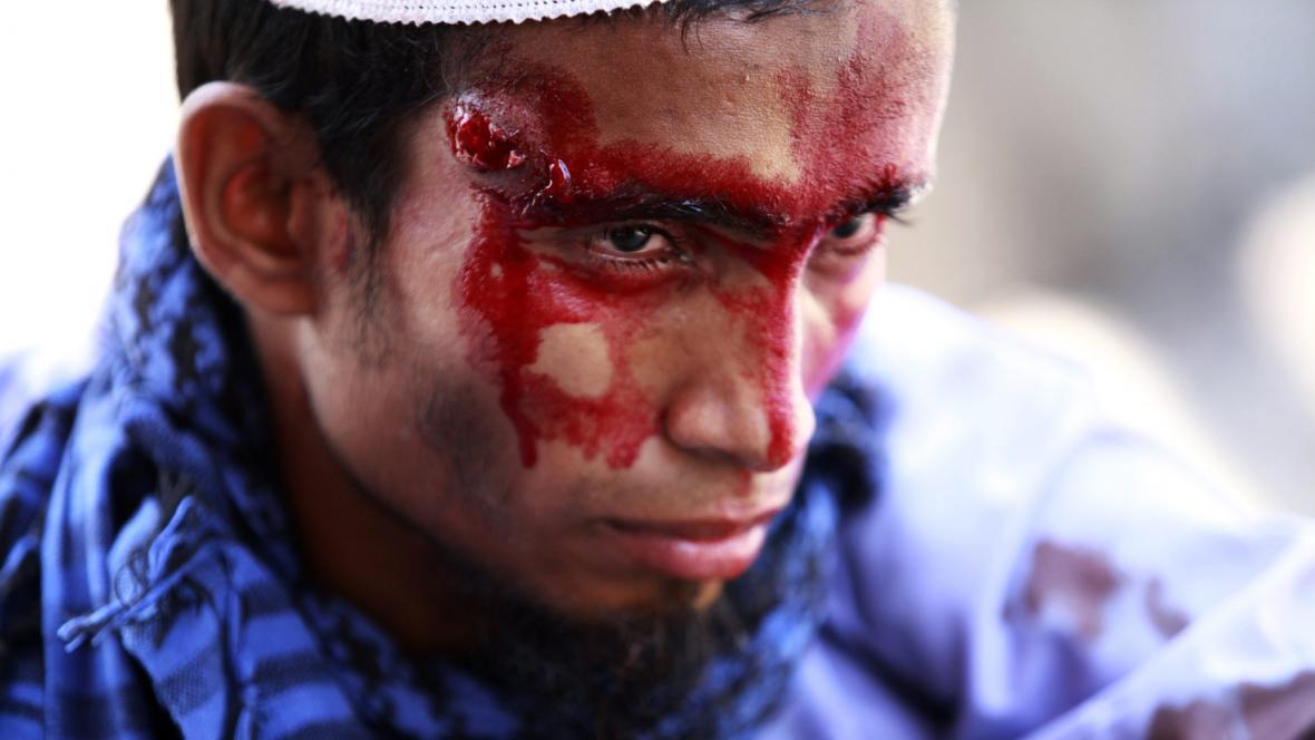 Zraněný po demonstraci v Dháce
