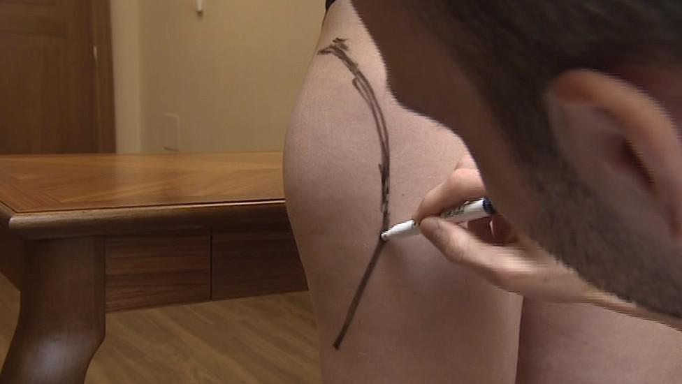 Liposukce patří spolu se zvětšením prsou mezi nejčastější operace