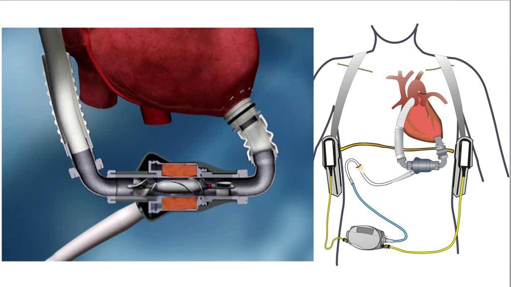 Implantabilní dlouhodobá srdeční podpora