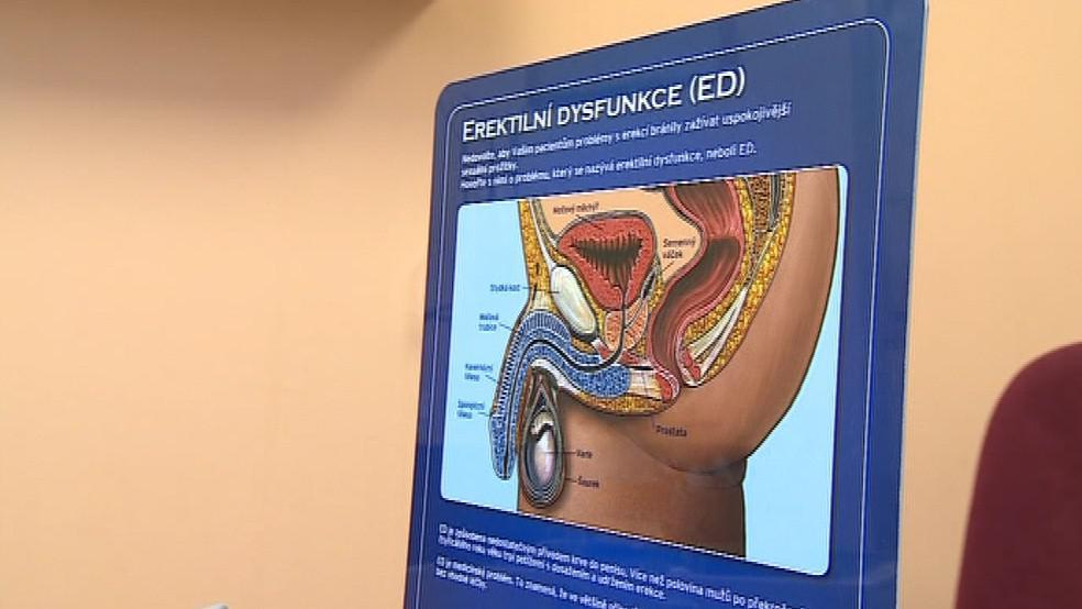 80 % mužů, kteří prodělali rakovinu prostaty, má problém se ztopořením