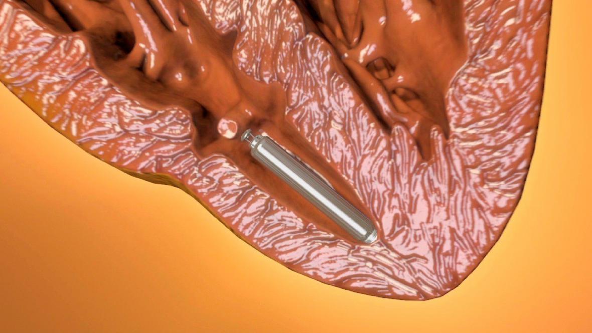 LCP kardiostimulátor uložený v srdci