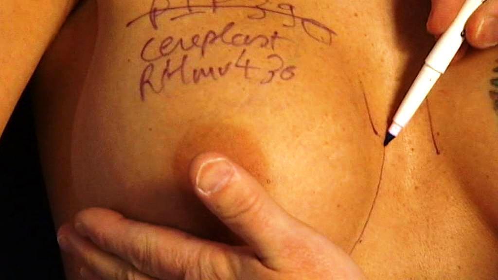 Augmentace prsu