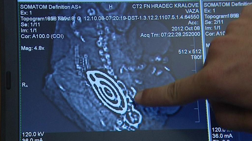 Tomografický snímek nálezu