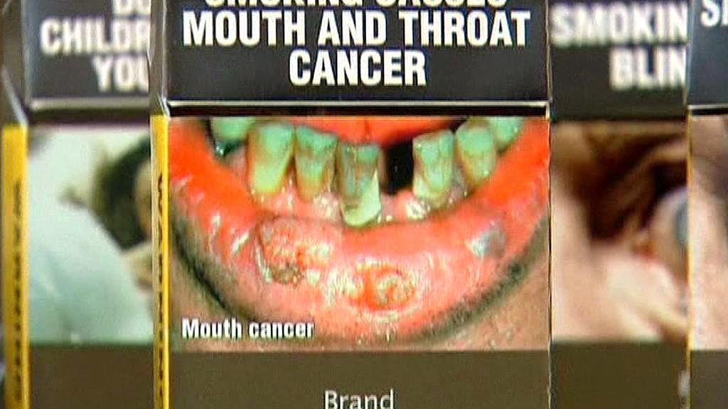 Fotografie následků kouření na krabičkách cigaret