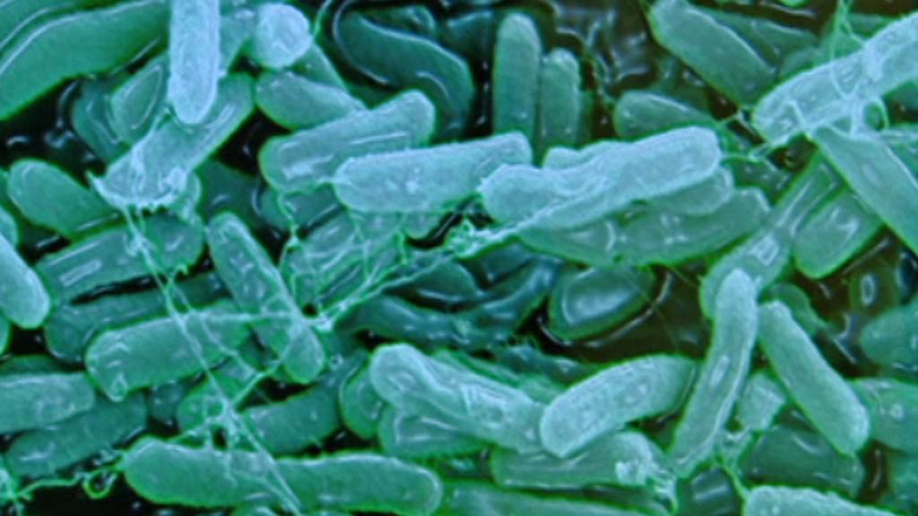 Mikrobiologická analýza