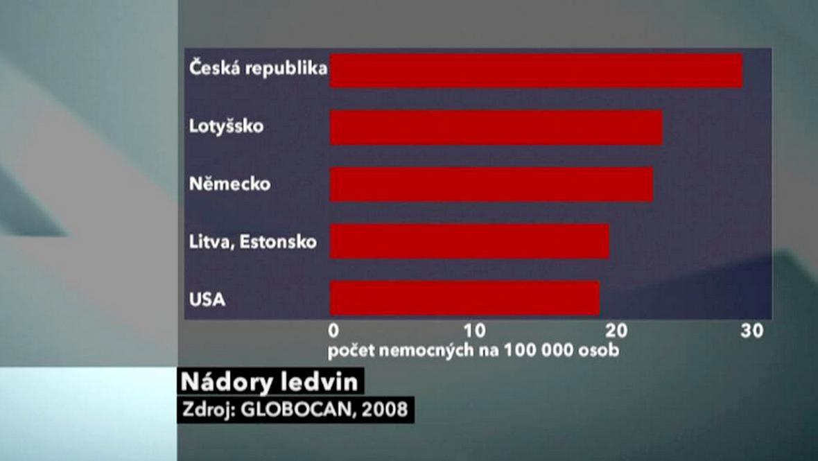 Výskyt nádoru ledvin v Česku