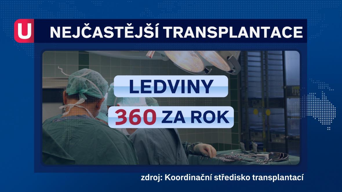 Nejčastější transplantace