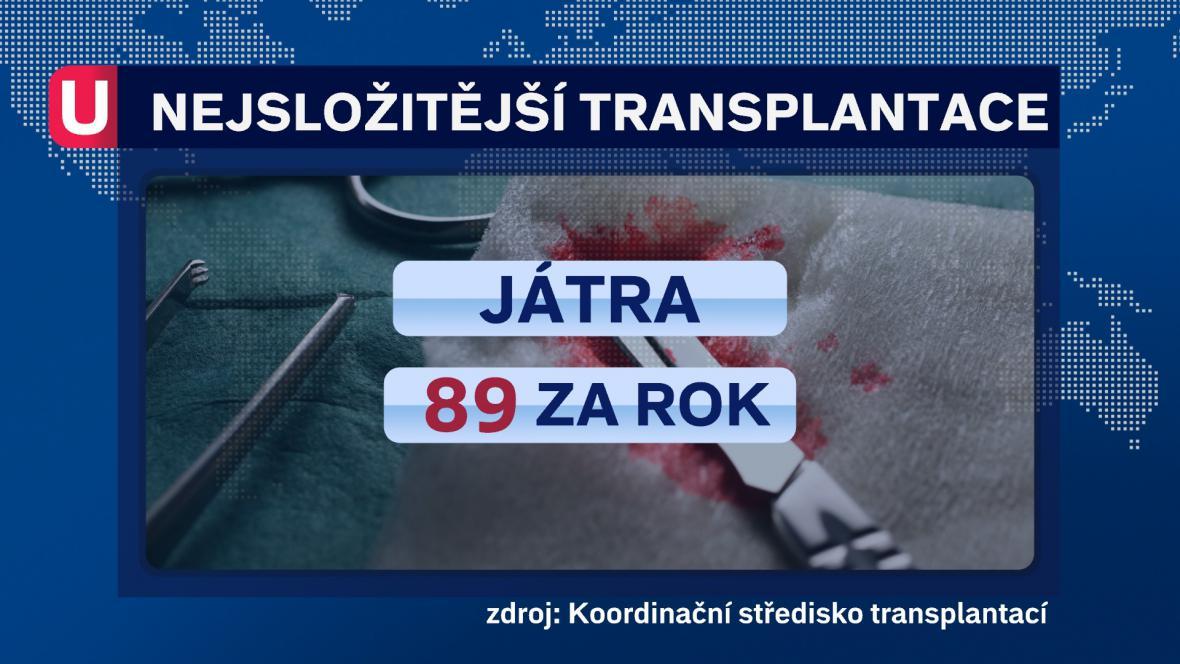 Nejsložitější transplantace