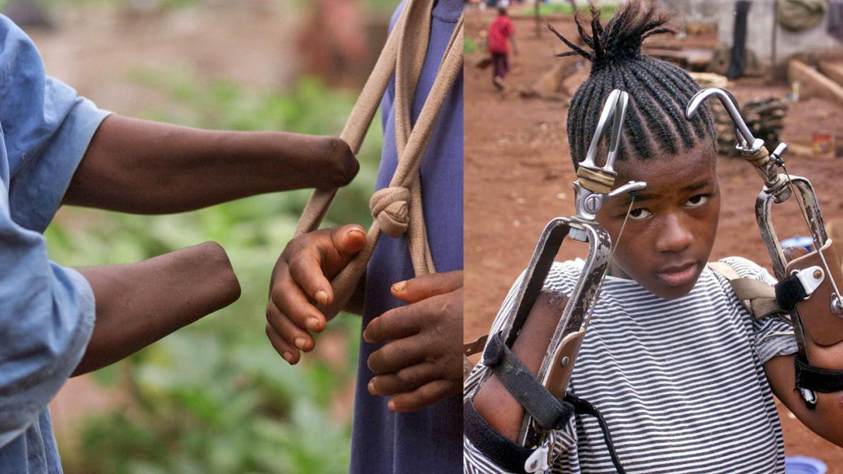 Oběti konfliktu v Sieře Leone