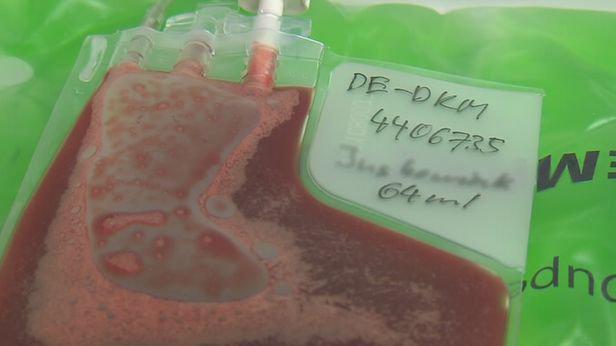 Pupečníkovou krev je možné odebrat z pupečníku i placenty