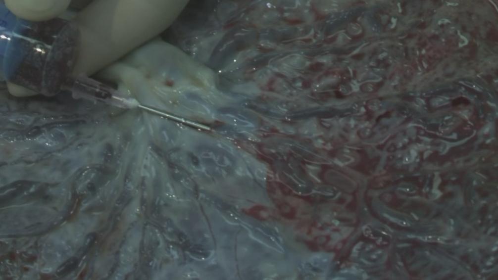 Odběr pupečníkové krve z placenty