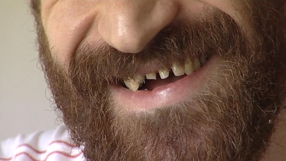 Hokejista Jiří Vašíček přišel ve své kariéře celkem o osm zubů