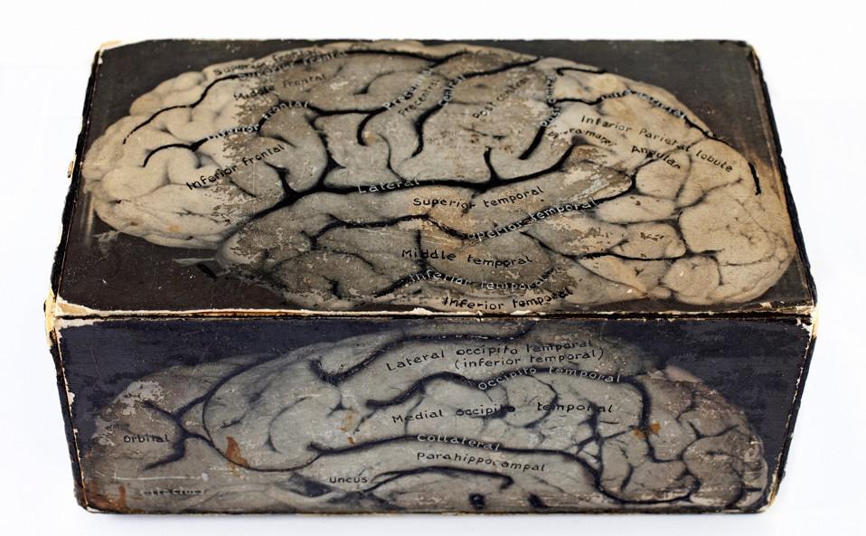 Nákres mozku z poloviny 20. století