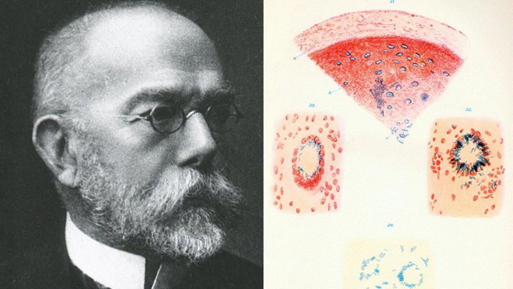 Robert Koch a ukázka z jeho práce