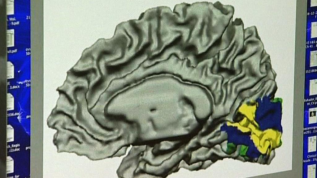 Centra paměti v mozku