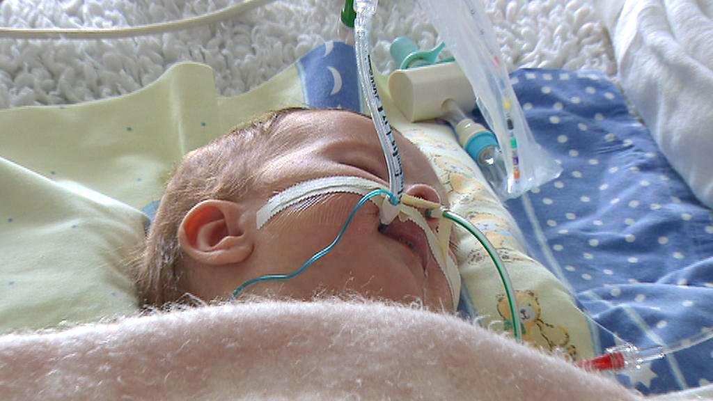 Novorozenec na přístrojích