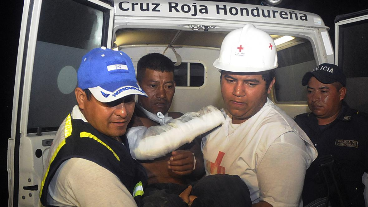 Zraněný po požáru věznice v Hondurasu