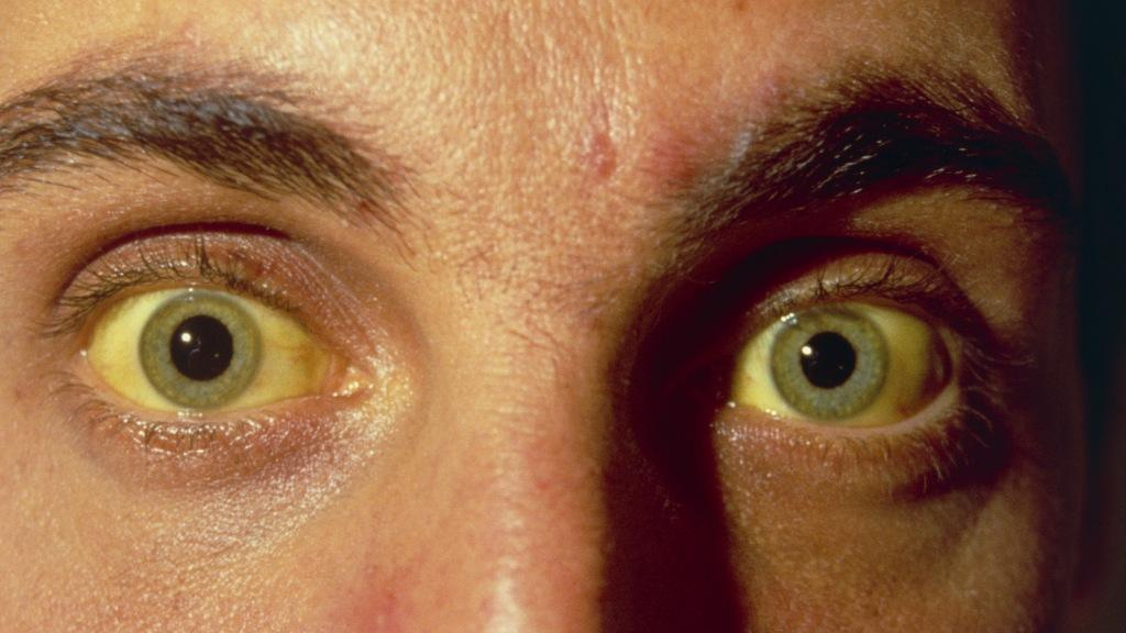 Cause of yellow eyes in adults