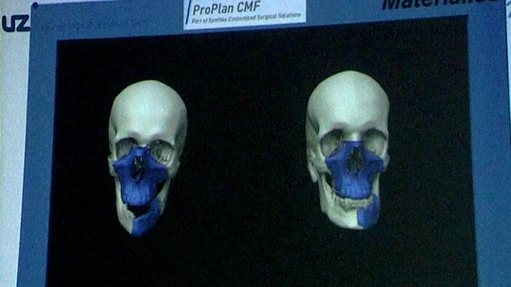 Transplantace obličeje provedená v Belgii