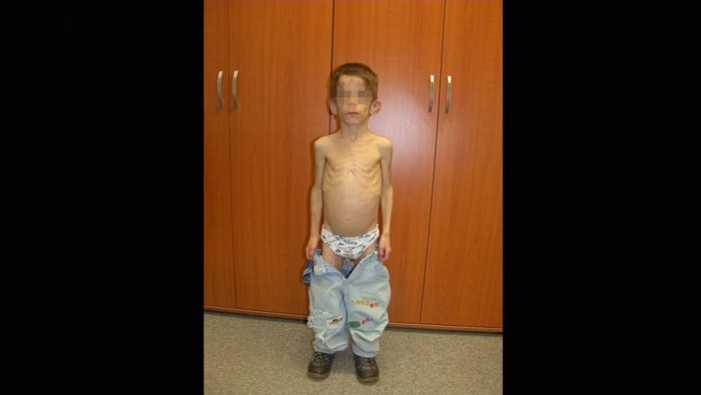 Týraný devítiletý Dominik