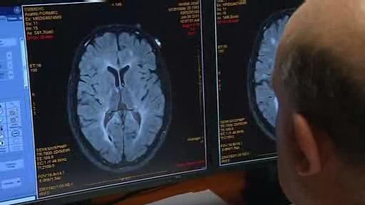 Výzkum roztroušené sklerózy