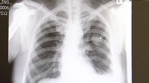 Metastázy v oblasti plic