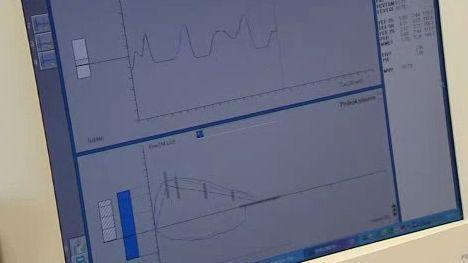 Spirometr