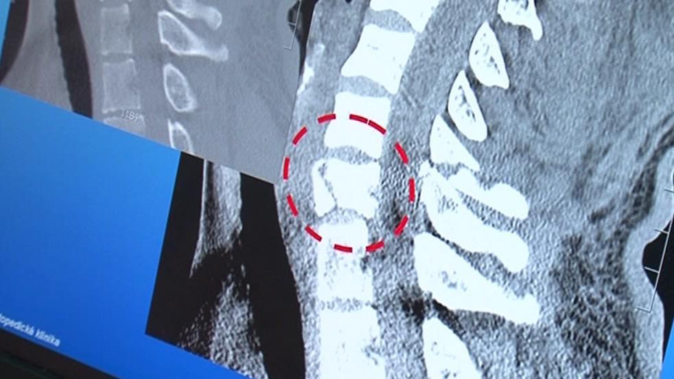 Zlomený obratel bude nahrazen jinou tkání
