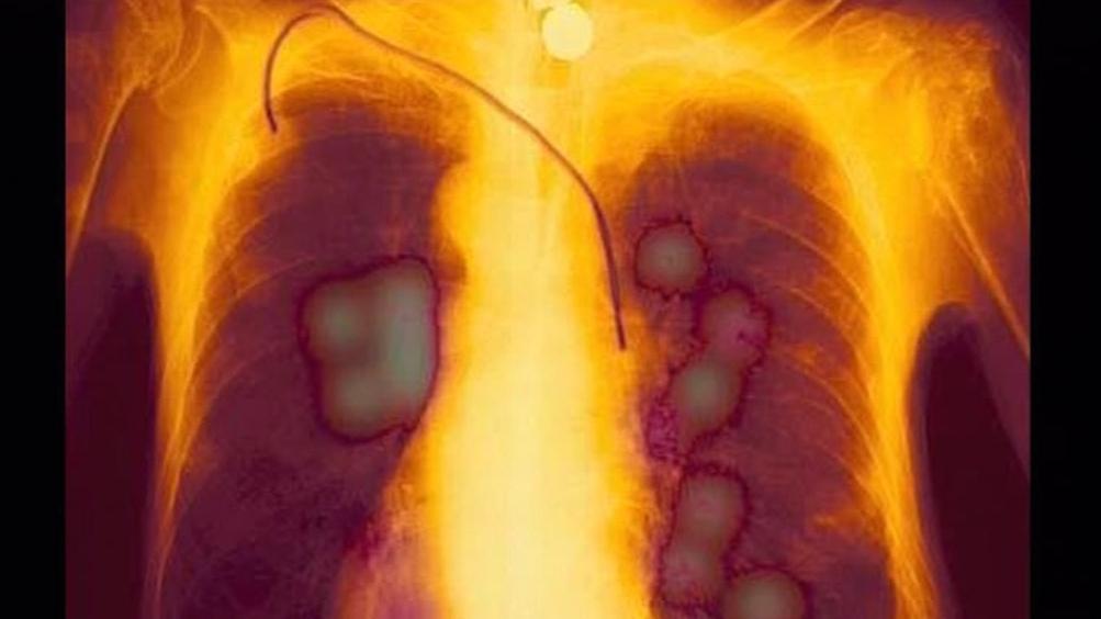 Nádory na plicích