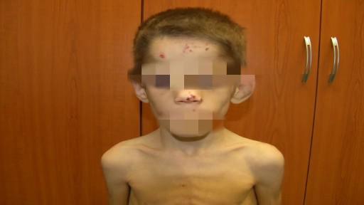 Týraný chlapec měl po celém těle odřeniny a modřiny