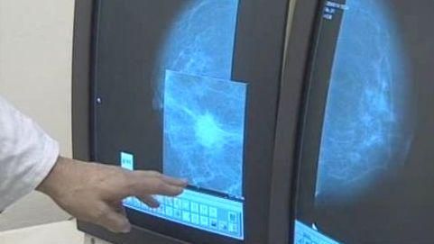 Mamografické vyšetření