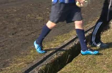 Fotbaloví hráči riskují zranění, při neopatrném šlápnutí si mohou i zlomit nohu