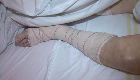Zraněný senior skončil v nemocnici