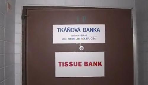 Tkáňová banka