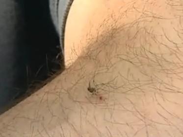 Komáří bodnutí