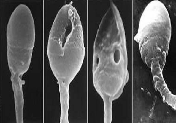 Různá poškození spermií