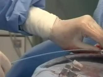 Lékaři ve FN Brno použili novou metodu, která pomáhá lidem ohroženým cevní mozkovou příhodou