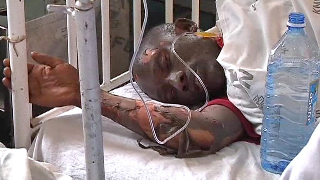 Muž popálený při výbuchu ropovodu v Nairobi