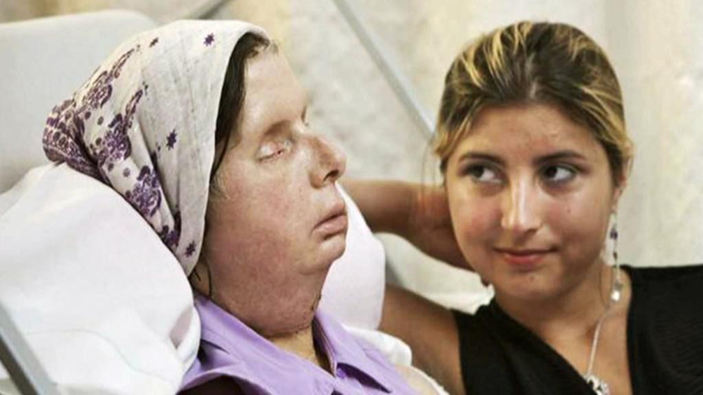 Charla Nashová po transplantací obličeje