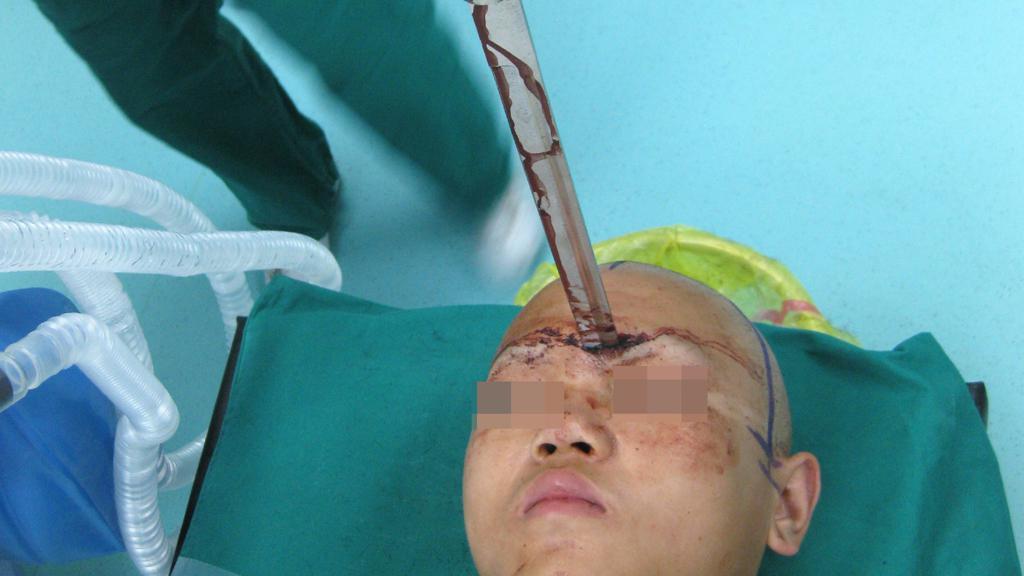 Číňan měl mezi očima zabodnutý meč