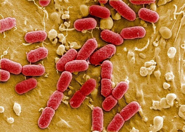 Enterohemoragická E.coli