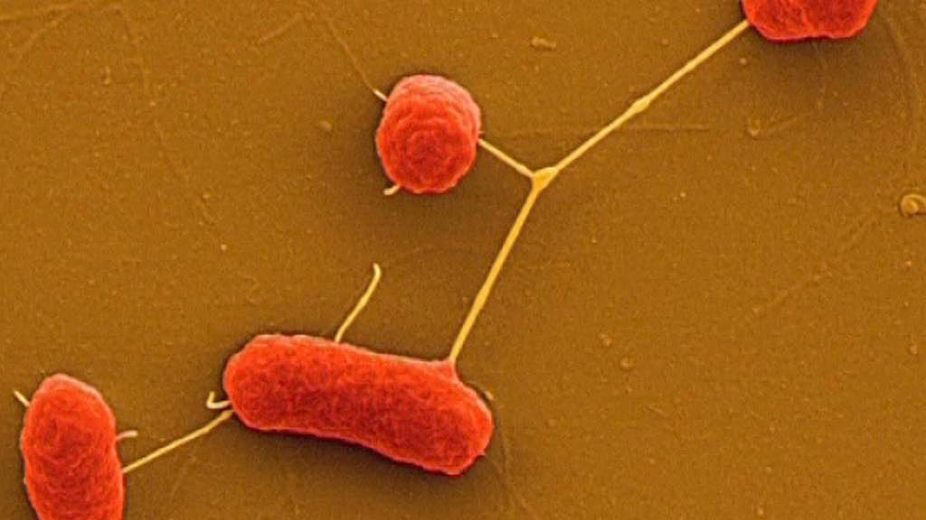 Enterohemoragická Escherichia coli