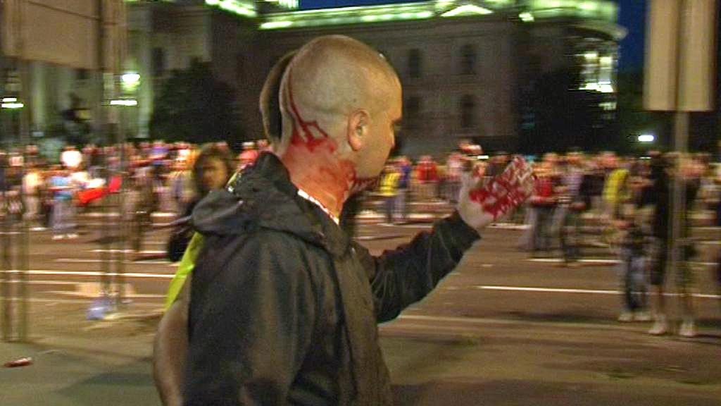 Zraněný demonstrant v Bělehradě