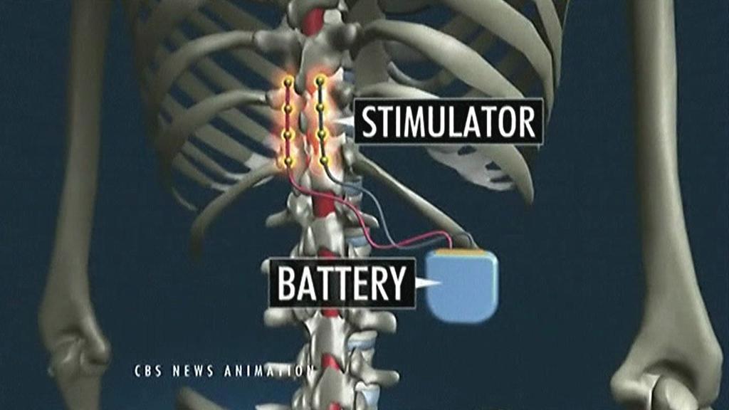 Elektrický stimulátor připojený k míše