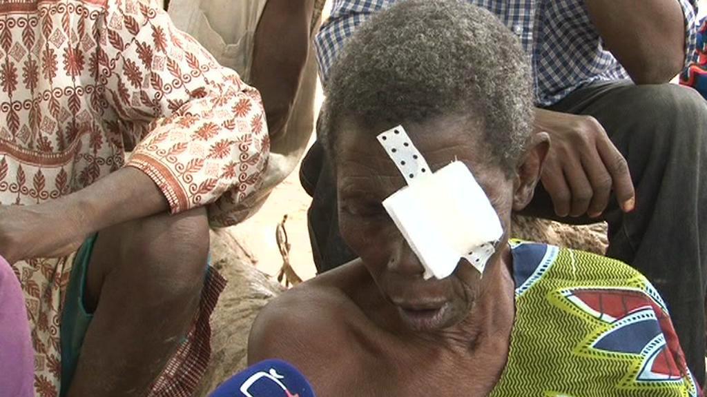 Pacient oční kliniky v Zorghu v Burkině Faso
