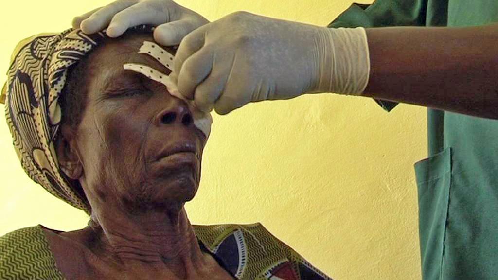 Pacientka oční kliniky v Zorghu v Burkině Faso