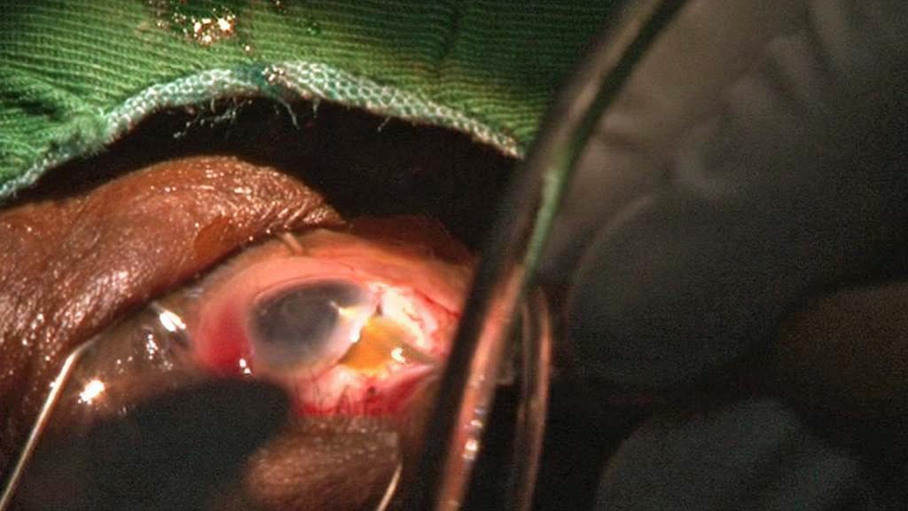 Oční operace na klinice v Zorghu v Burkině Faso