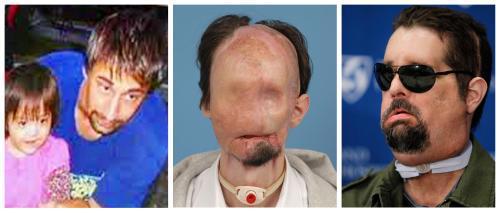 Dallas Wiens před nehodou, po nehodě a po transplantací obličeje