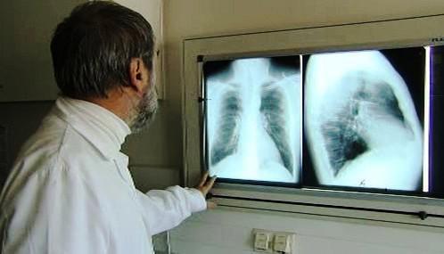 Plicní onemocnění
